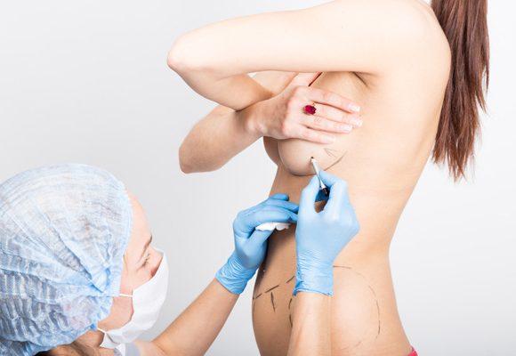 Chirurgie d'harmonie du sein