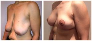 photos avant après lifting seins Tunisie sans pose implant
