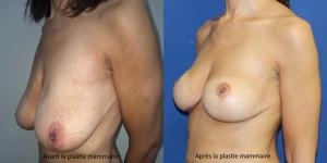 photos avant après lifting seins Tunisie avec pose implant