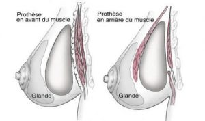 position pose de prothèses mammaire