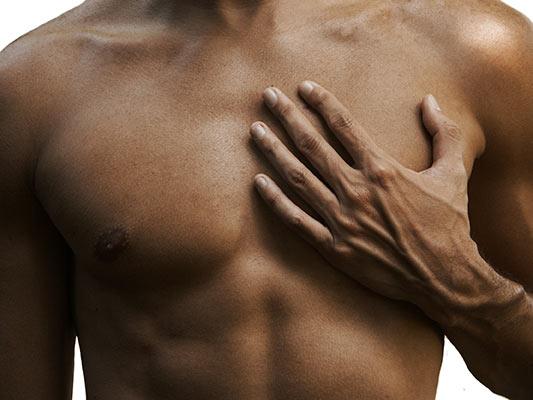 La gynécomastie : L'hypertrophie mammaire masculine