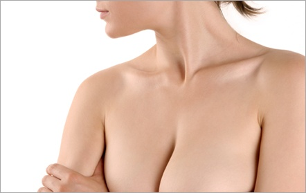 Ptôse mammaire : à quel moment faire un lifting des seins ?
