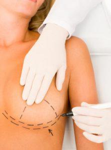 chirurgie-seins-Tunisie