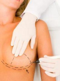 Le voyage post-opératoire d'une augmentation seins